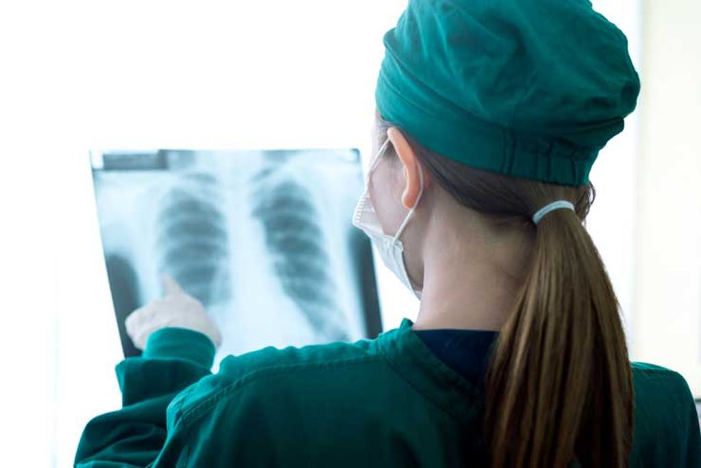 Doctor examines lung x-ray